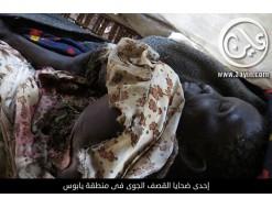 سقوط (11 ) شخص بين قتيل وجريح في قصف لسلاج الجو السوداني في النيل الازرق وجنوب السودان