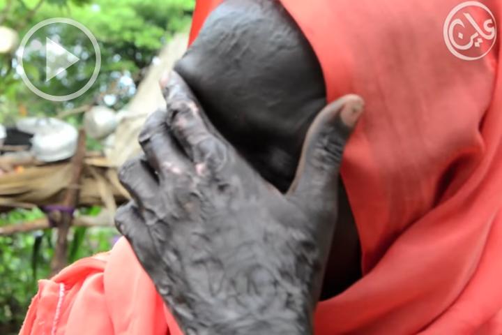سودانيات يحكين مأساة حرق قريتهن