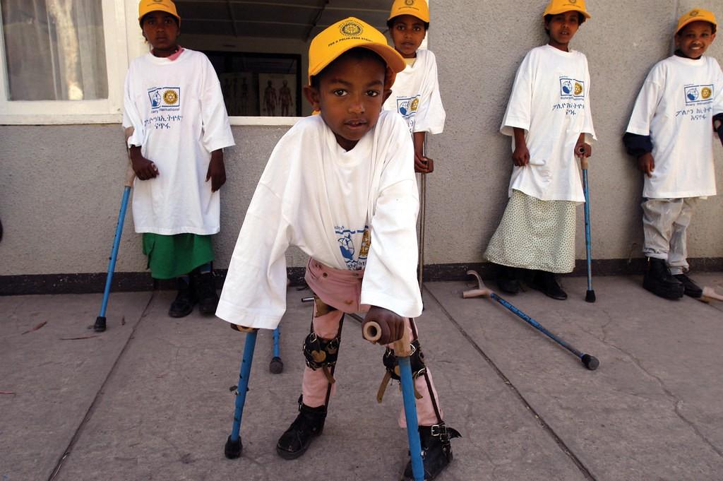 تسجيل أول إصابة بـ(شلل الأطفال) في جنوب دارفور